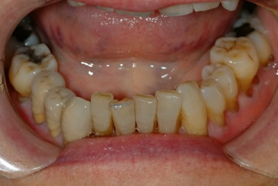 Metal ceramic crowns (PFM)